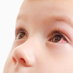 Bindehautentzündung beim Kind