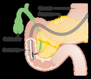 ERCP Diagram