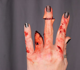 Severed fingers.jpg