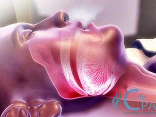 Afinal, quais são as causas da Apneia do Sono? | 21 3594-6160