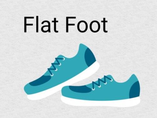 Yoga for flat foot, yoga asanas which improve flat foot, yoga for feet