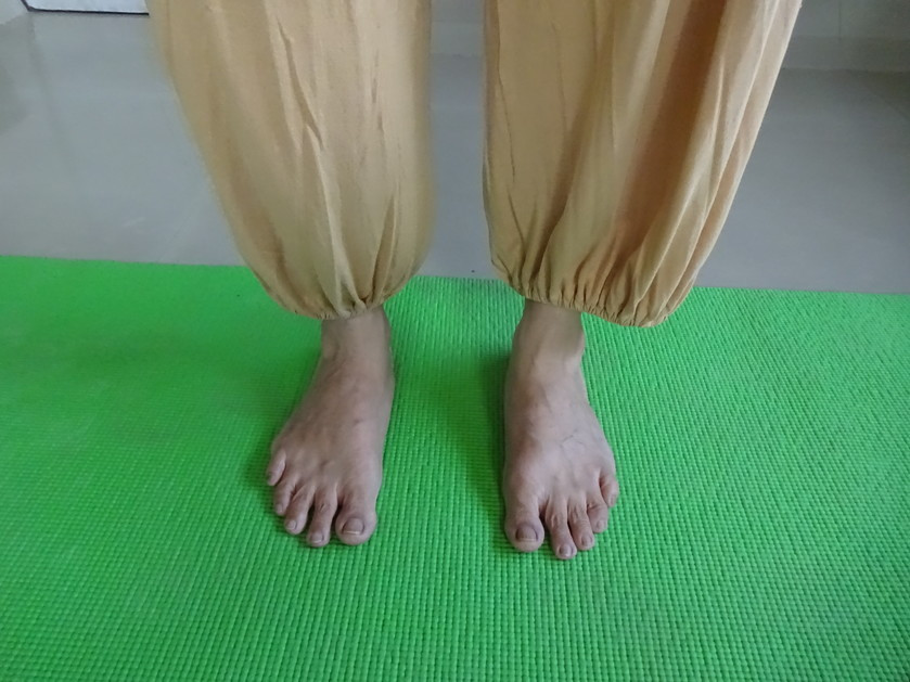 Parallel feet while standing