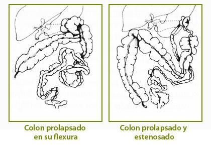 intestinosf03.jpg