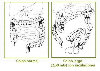 intestinosf01.jpg