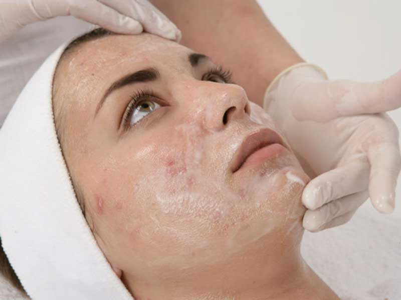 Treatment with the Perfect Peel