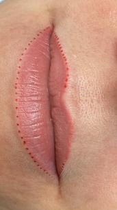 Healed Lip Blushing in Denver, CO