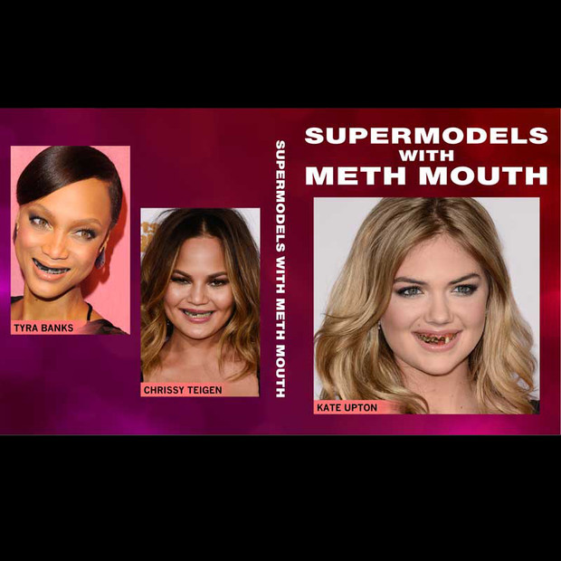 Supermodels With Meth Mouth