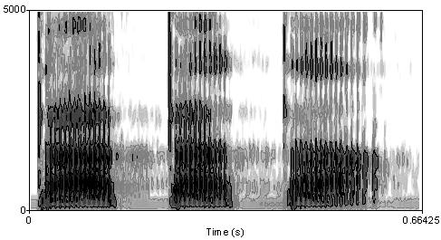 Spectrogram voice