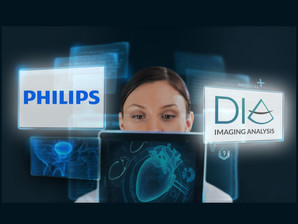 DiA Imaging Analysis partners with Philips to enhance ultrasound with AI-based image quantification