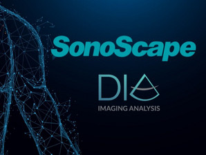 DiA Partners with SonoScape Medical Corporation to Deliver Cardiac Ultrasound AI Solutions