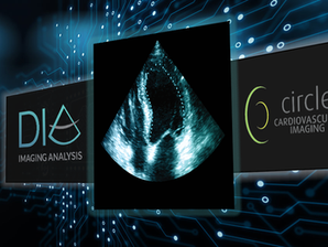 Circle CVI Announces Partnership with DiA to Deliver AI-based All-in-One Cardiac Imaging Solutions