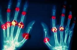 Effects on rheumatoid arthritis