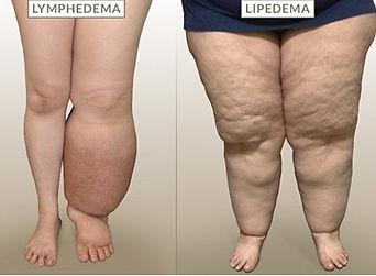 lipedema vs lymphedema.jpg