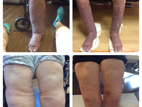 Before and After- Lymphedema results