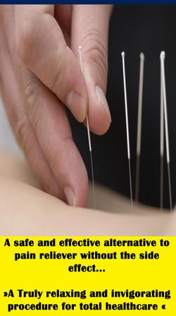 sticker acupunctyur bacoor