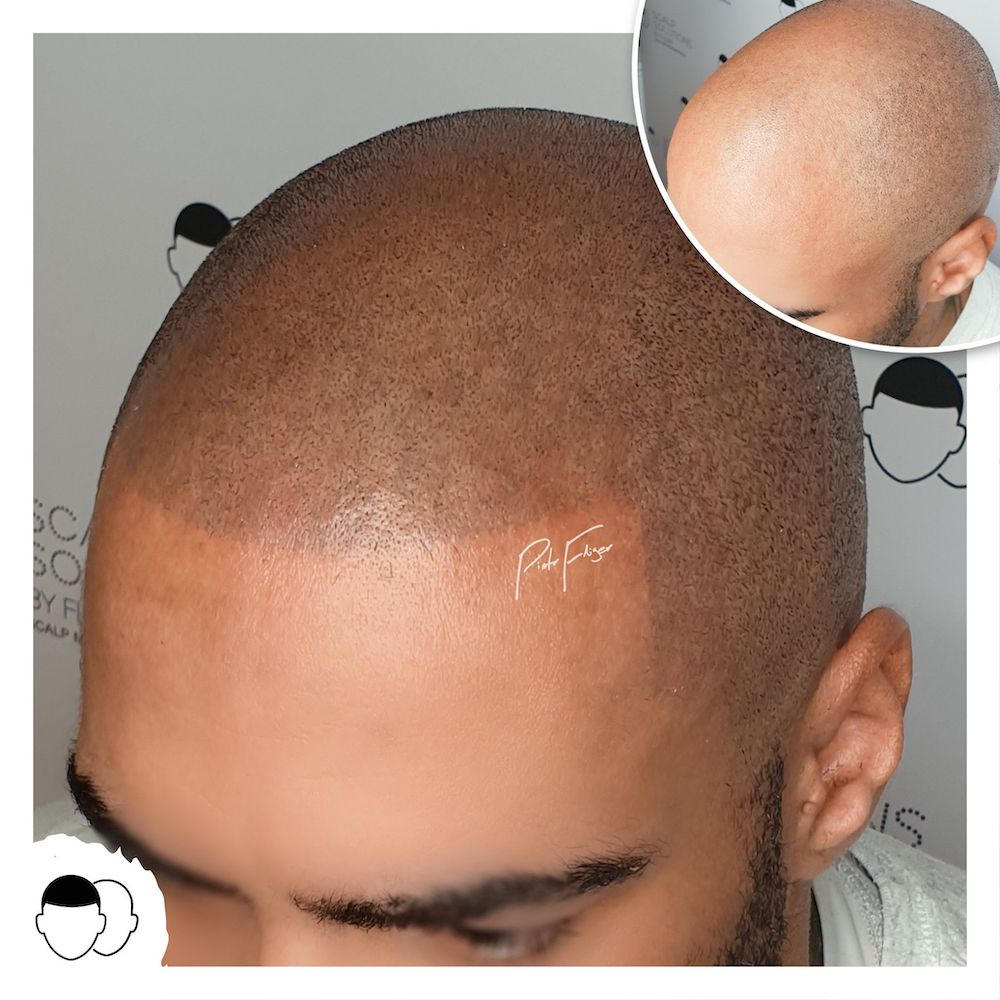 Piotr Fliger Scalp Micropigmentation UK