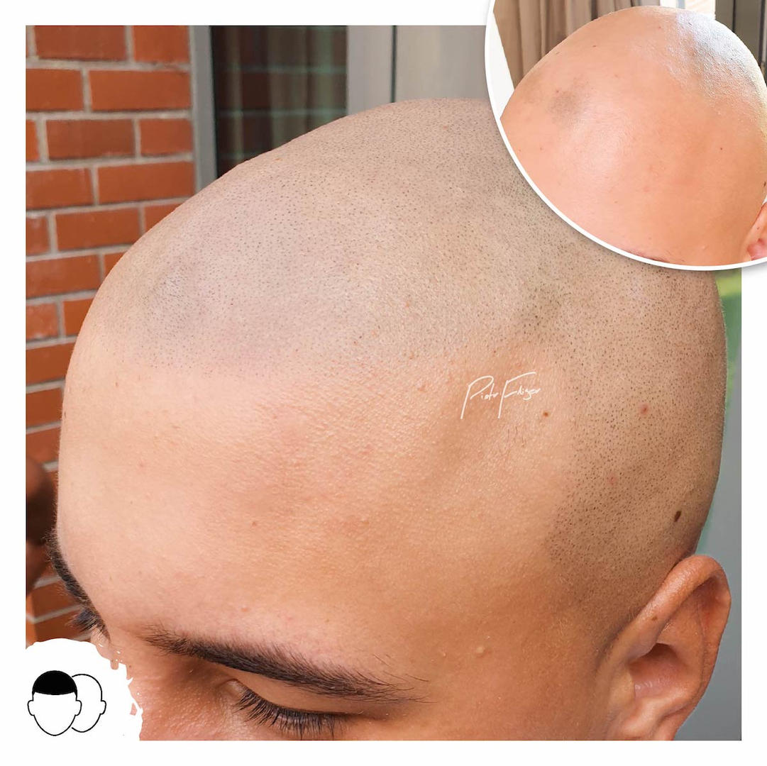 Alopecia Scalp Micropigmentation