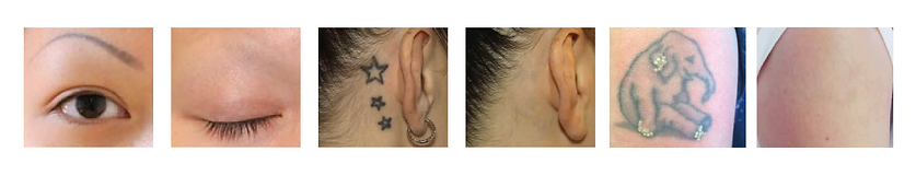 Tattoo removal Αφαίρεση τατουάζ σεμιναριο - Ηλίας Τσιγαρίδας από την Dermacraft