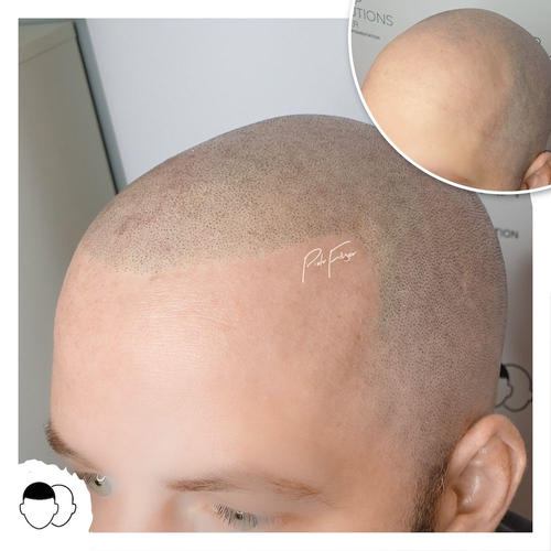 Scalp Micropigmentation by Piotr Fliger UK