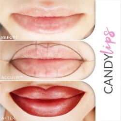 Candy Lips - Τατουάζ Χελιών