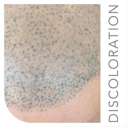 Bad Scalp Micropigmentation NEW NEW NEW-