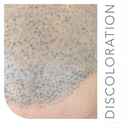 Bad Scalp Micropigmentation NEW NEW NEW-