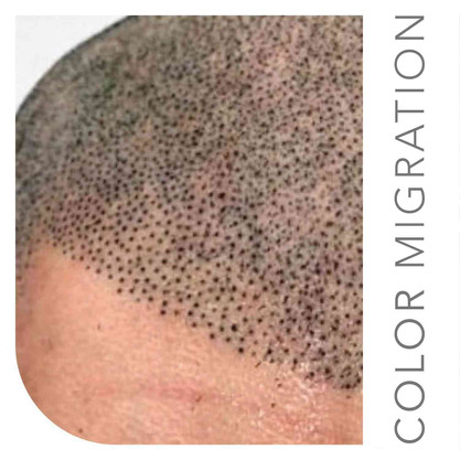 Bad Scalp Micropigmentation-NEW-01 COMP.