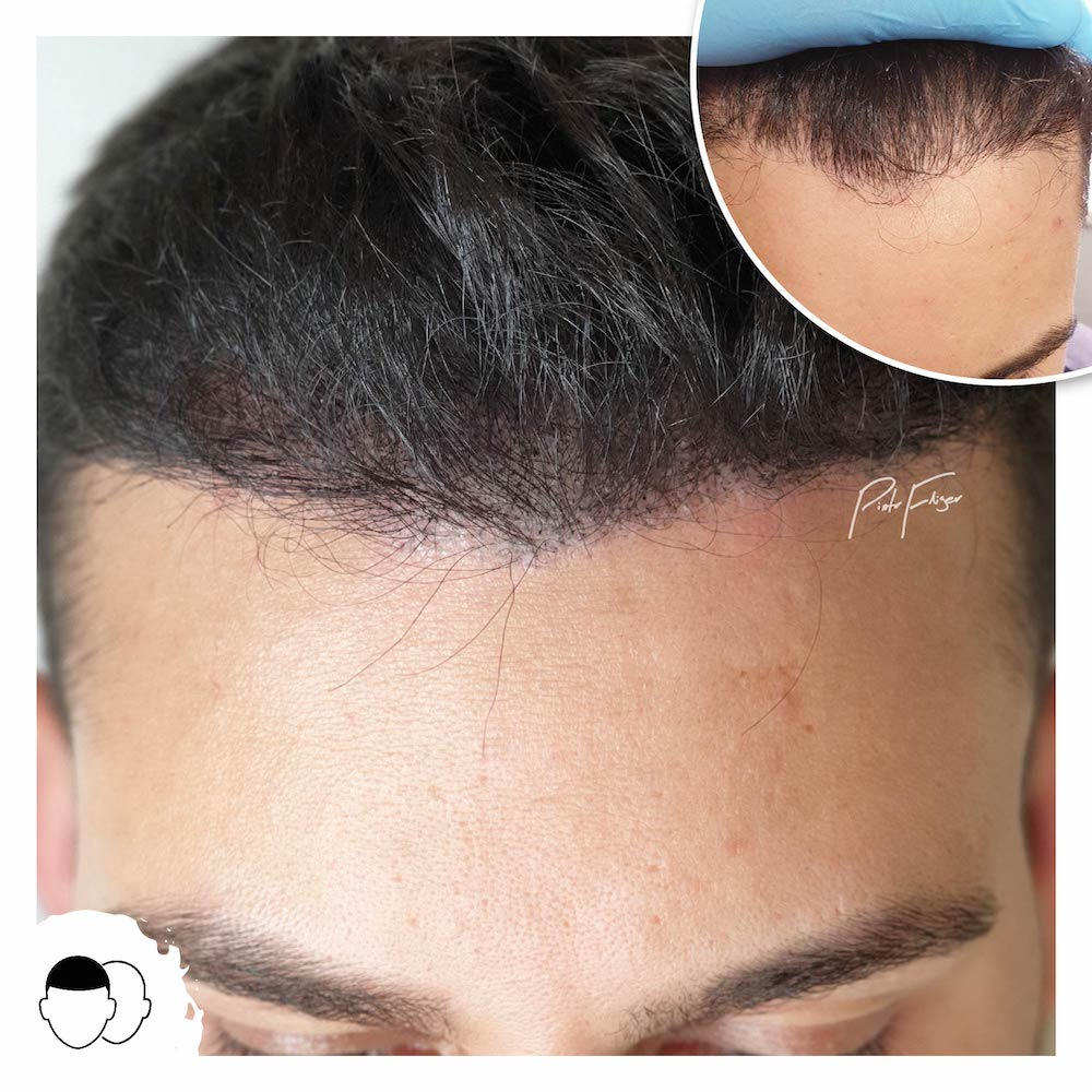 Thinning Hair Scalp Micropigmentation UK