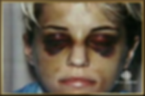 Karla Homoka _Raccoon Eyes_ .png
