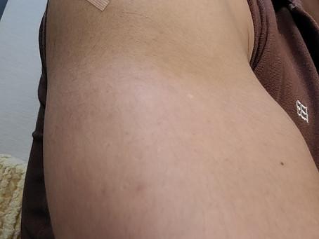 コロナワクチン1回目の副反応(36歳マッチョの場合)