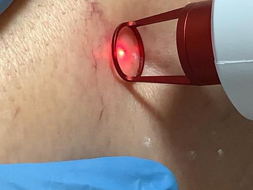 Orientações Para Tratamento com Laser