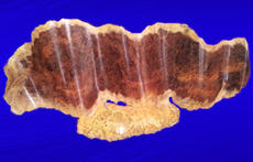 Red Mallee Burl