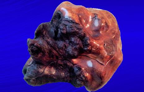 Black Walnut Burl