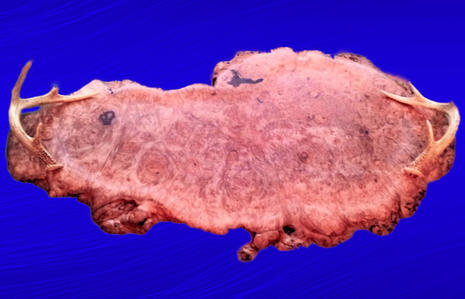 Birds Eye Maple Burl