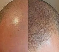 Before & After Scalp Tattooing