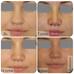 Что происходит с носом после операции?