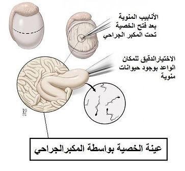 عينة الخصية بالمكبر الجراحي