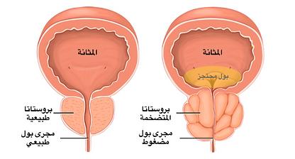 Normal vs abnormal prostate.png