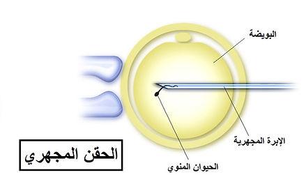 الحقن المجهري - د. أحمد راغب
