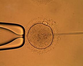 علاج عقم الرجال في عصر الحقن المجهرى