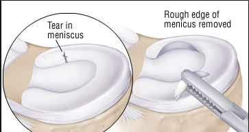 partial meniscus removal - Google Search