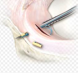 arthrex meniscus.jpg