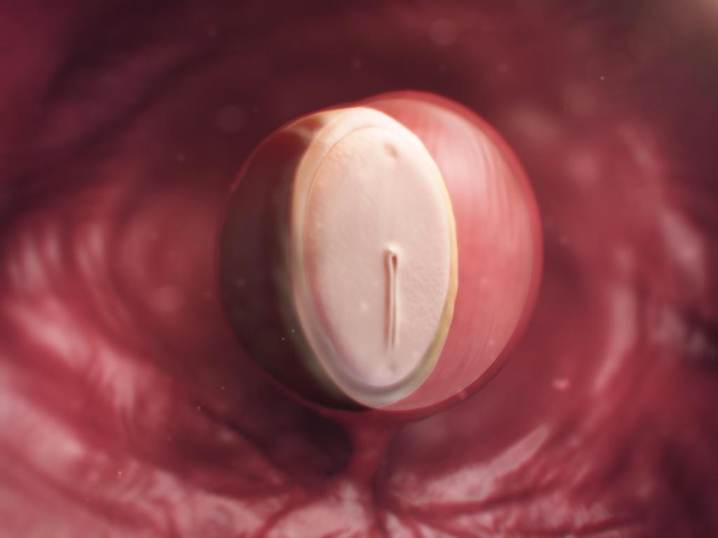 sacul amniotic