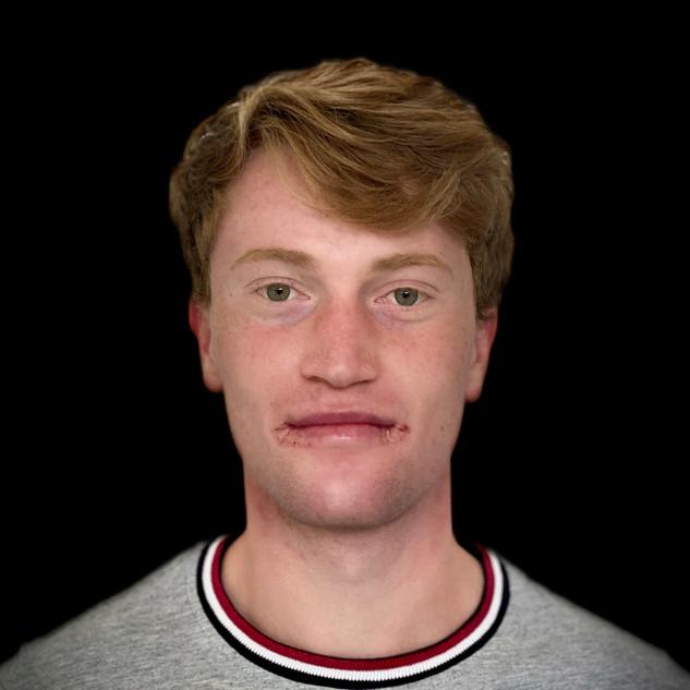 Philipp Klimpel