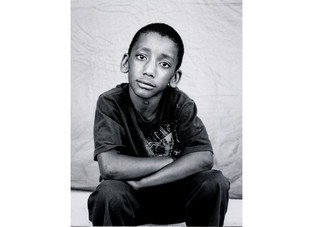 Children Experiencing Homelessness Face Malnutrition and Cognitive Impairment