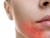 Unmasking healthy skin