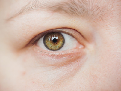 Why PRP is my first choice for under eye treatment