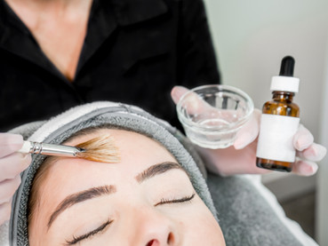 How chemical peels improve the quality of your skin.