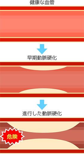 血管の断面