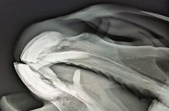 Röntgenfoto EOTRH